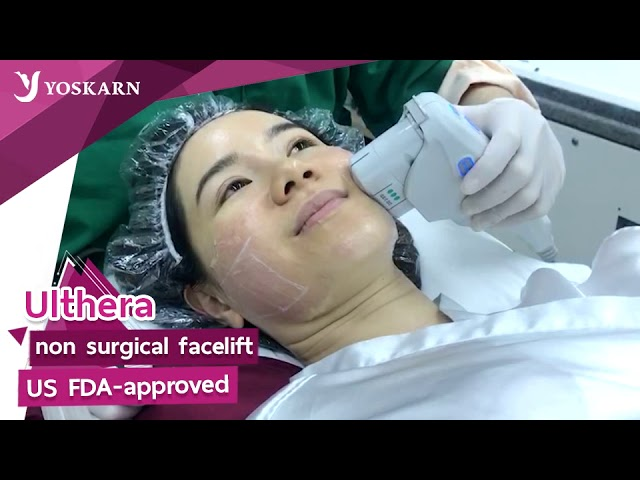 Non-Surgical facelift by Ulthera at Yoskarn Clinic